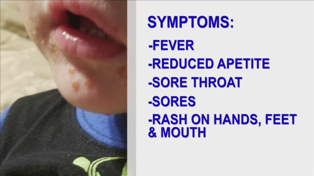 Hand-foot-and-mouth disease peaks in warmer months